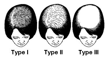 Female Androgenetic Alopecia Causes, Diagnosis, and Treatments