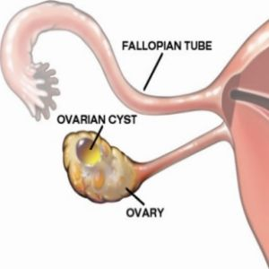 Herbal Remedies for Ovarian Cysts: Chasteberry, Yam, Red Clover, Milk Thistle, Echinacea, and Green Leafy Vegetables.