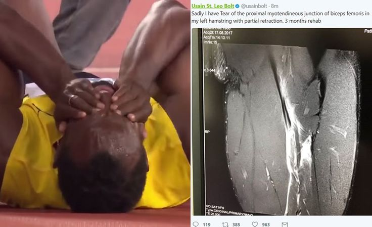 Usain Bolt shares X-ray showing torn hamstring after people said he faked his injury