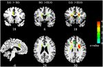 Love-related changes in the brain: a resting-state functional magnetic resonance imaging study
