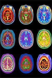 MRI Brian in Color
