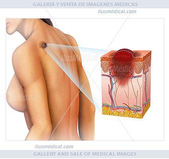 Ilustración descriptiva de figura humana con un melanoma en la espalda. El melanoma es un ...