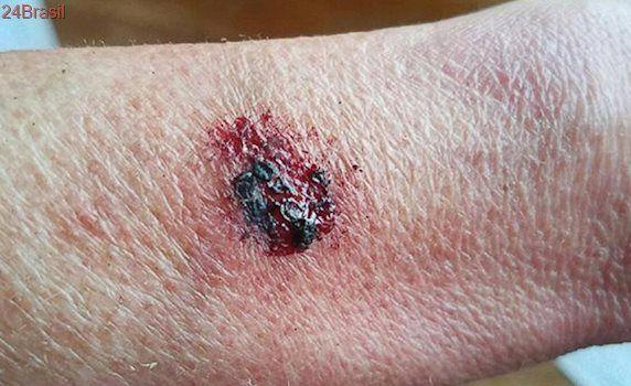 Smatband Fitbit Flex 2 explode no pulso de usuária, que sofre queimaduras de 2º grau