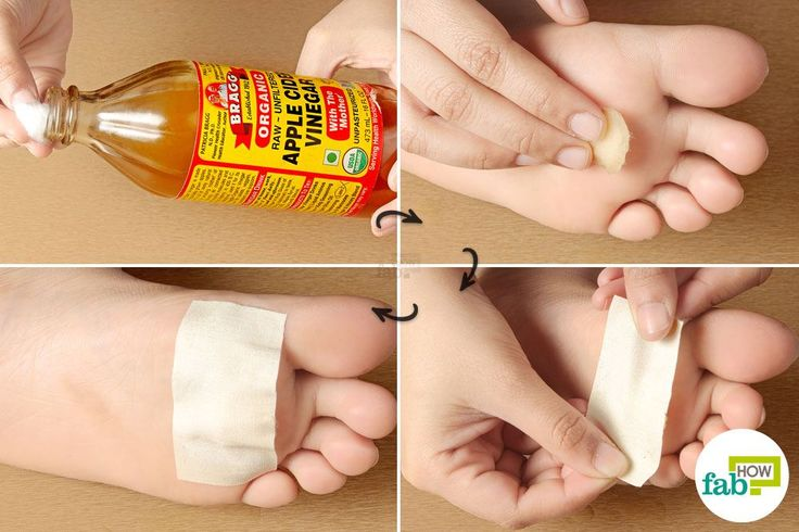 how to remove hand callus