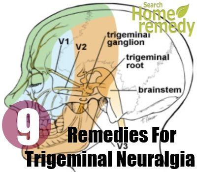 Trigeminal-Neuralgia1