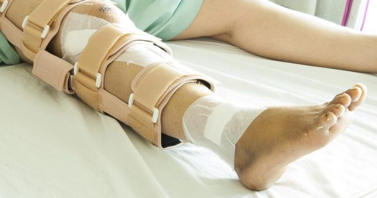 A broken leg will cause you to have to take a long break from training -- you will likely be in a cast for 12 to 16 weeks and have to perform specialist light physical therapy exercises for some time after the cast comes off. During this period, it is likely that you'll lose a lot of strength in both legs, especially the broken one. However,...
