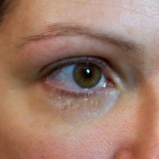 how to get rid of milia under eyes