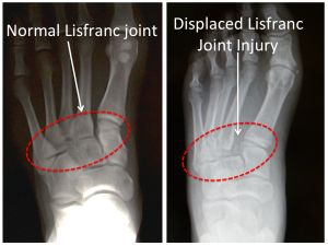 Lisfranc injury sprain: lisfranc ligament connects the 1st metatarsal and 1st cuneiform -- ligament does not hold joint together and joint separates