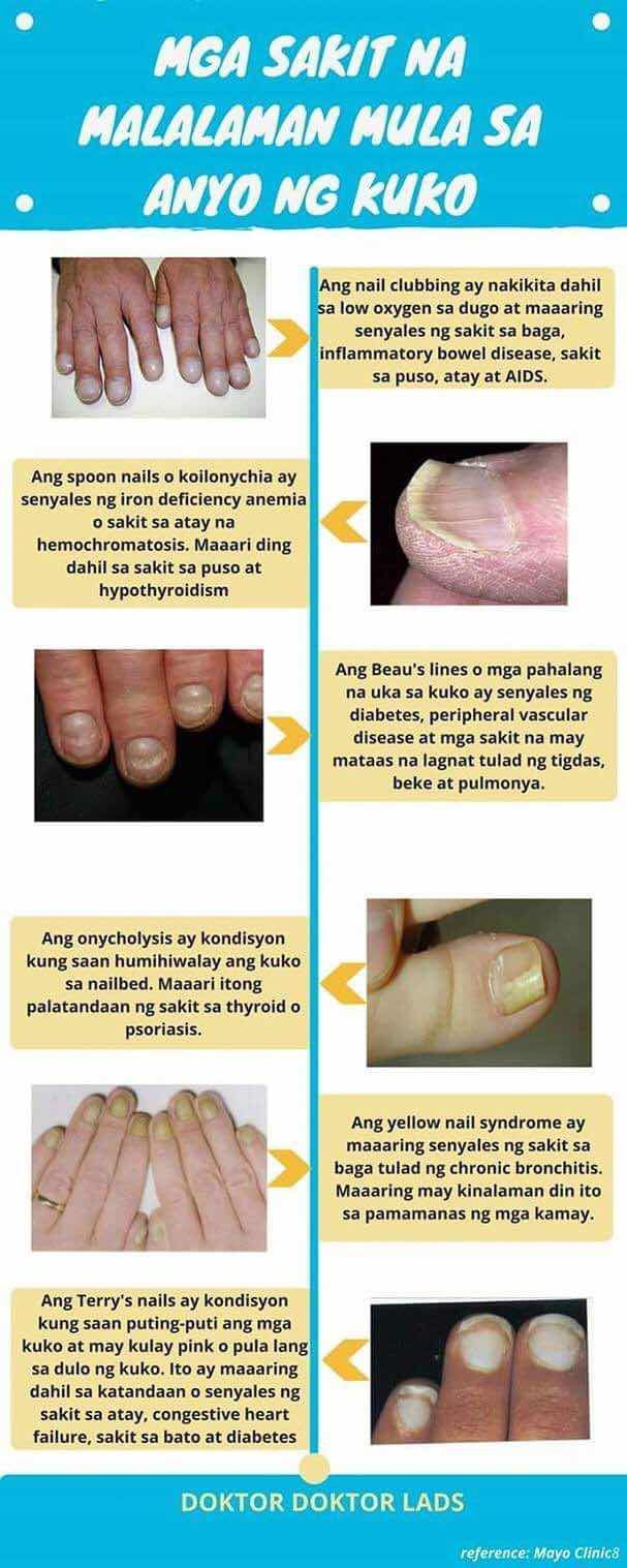 Posted by: Marjun Gugulan Written by: Dr  Willie Ong and Dr