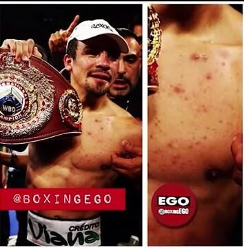 Juan Manuel Marquez Steroids Rumor Spreads! Acne On Boxer's Chest, Sudden Body Mass Increase Are Telltale Signs! 40 Year Old Boxer's Trainer Is Convicted Drug Dealer! : Trending News : KpopStarz