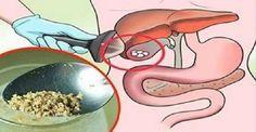 Remédio natural com apenas 1 ingrediente - elimine cálculos na vesícula sem cirurgia! | Cura pela Natureza
