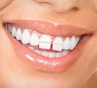 Get rid of the gap between your teeth without braces
