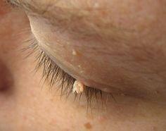 Remedios caseros para verrugas y la más grande del mundo, ¡una pasada!
