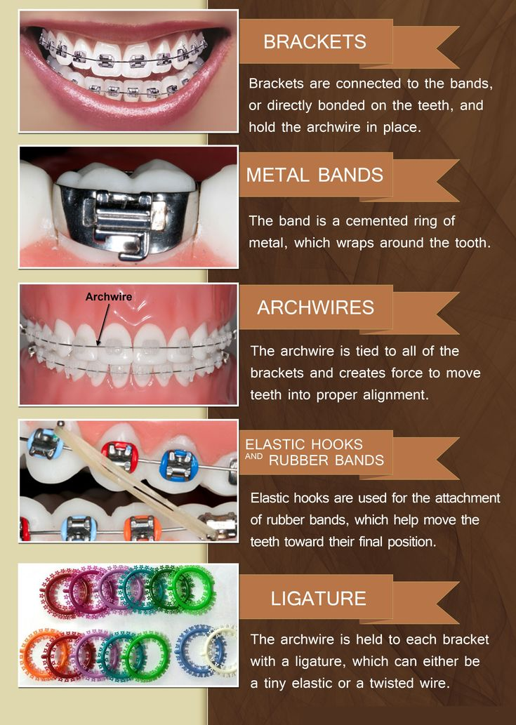 Common #braces and orthodontic terms and what they mean #BozemanSmiles #BozemanMontana