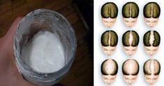 Seguendo le istruzioni descritte in questo articolo imparerai a produrre uno shampoo naturale fai da teper favorire e stimolare la ricrescita dei capelli. Il bicarbonato di sodio è un ottimo prodotto, in grado di migliorare anche la salute e l'aspetto dei nostri capelli. Proprio col bicarbonato di sodio è possibile preparare un shampoo per stimolare la ricrescita dei capelli. In una bottiglietta di compressione versa 1 parte di bicarbonato con 3 parti d'acqua. Applica sui capelli asciutti…