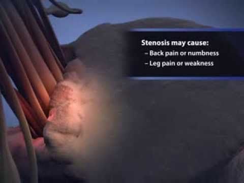 Animation of lumbar spinal stenosis courtesy of Visual Health Solutions, Inc. retrieved from http://orthoinfo.aaos.org/topic.cfm?topic=A00329