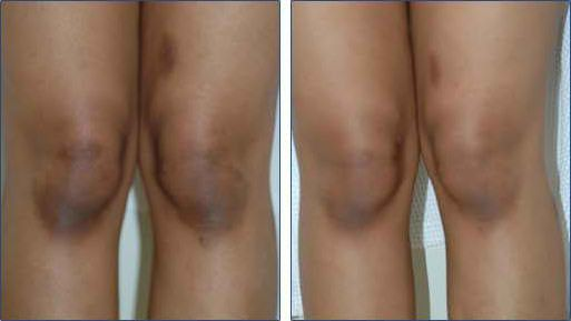 How To Naturally Whiten Dark Knees and Elbows. My knees get dark from spending all day on the floor with my class