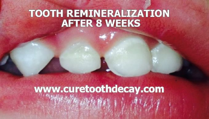 baby tooth remineralization after 8 weeks