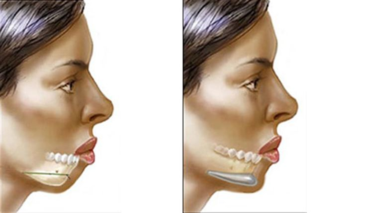 Chin Augmentation or Mentoplasty is a type of plastic surgery, performed to reshape or increase the size of the chin, so that the appearance of the face is balanced . Implantation is performed to add volume to the chin, whereas bone reshaping is done to reduce the size of the chin. It costs around USD 2500 in Germany,while the procedure costs about USD 740 in Thailand. To get a free quote for an affordable treatment, visit: http://www.medhalt.com/cheap-chin-augmentation-mentoplasty-overseas/