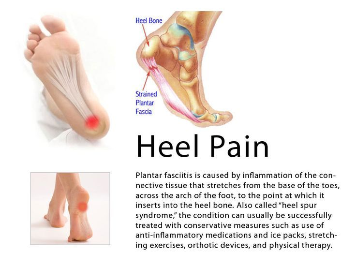 Commonly recognized types of Heel pain www.kazmerfootand