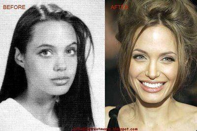 Best Celebrity men Lips | ... Angelina Jolie Nose job (Rhinoplasty), Chin Implants, Lip Augmentation