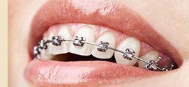 Pediatric Dentist Mississauga, Dental Implants Brampton