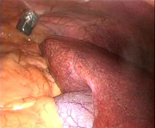 Enlarged fatty liver pictures and medical treatments. http://fattyliverdisease... fatty liver2