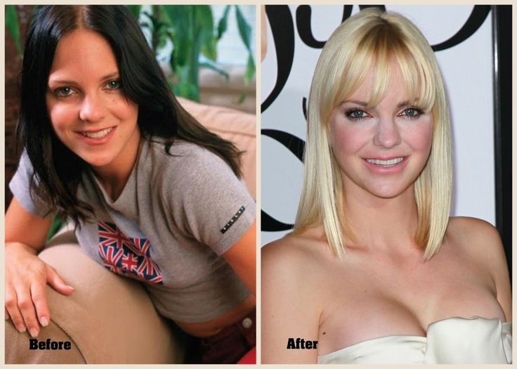 Anna Faris Plastic Surgery Before After - http://www.feeleh.com/anna-faris-plastic-surgery-before-after/ : #CelebPlasticSurgery Anna Faris plastic surgery on face especially lips can be seen in form of before and after pictures so that able to see some differences that highly feature her elegance. Anna Faris is an American actress and singer. She is known for her comedic roles in the Scary Movie film series, Lost in...