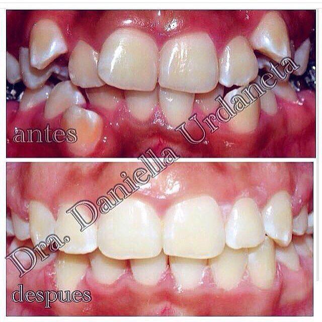 #Invisalign endereza los dientes mediante alineadores prácticamente invisibles y extraíbles que se fabrican a la medida de sus dientes para garantizarle una mayor comodidad. Conforme cambie de juego de alineadores cada dos semanas sus dientes se irán moviendo de forma gradual poco a poco y semana tras semana hasta que estén en la posición final. #ortodoncia #ortodoncista #nicaragua #nica #managua #jinotepe #carazo #odontologia #dentista #ortodonciamoderna #ortodonciaestetica #esteticadental…