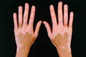 Cara Mengobati Vitiligo yang efektif dan aman kini hanya dengan QnC Jelly Gamat. Hilangkan vitiligo secara alami dan tanpa efek samping apapun.