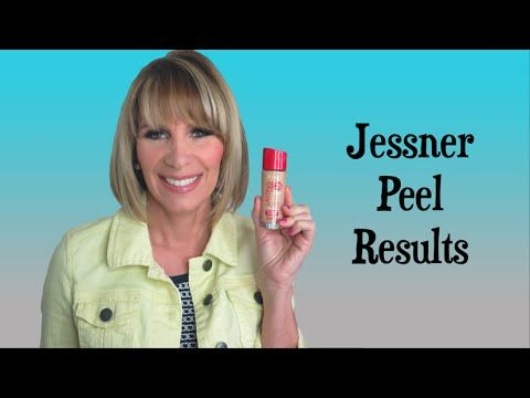 50 Years Young: My Jessner Peel Results
