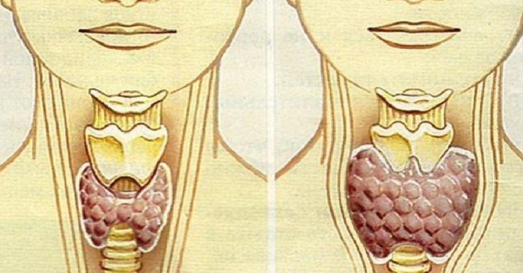 θυρεοειδούς Θεραπεία