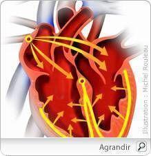 Une arythmie cardiaque se produit lorsque le coeur bat irrégulièrement ou s'il bat à moins de 60 pulsations ou plus de 100 pulsations à la minute, sans que cela soit justifié.  L'arythmie est le trouble cardiaque le plus fréquent. Dans un coeur arythmique, les impulsions électriques qui contrôlent les battements du coeur se produisent de façon désordonnée ou ne passent pas par les circuits électriques habituels.