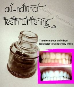 Before & After teeth whitening, all-natural no synthetic ingredients with organic turmeric, food-grade bentonite clay, and activated charcoal