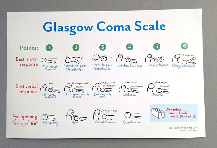 By popular request, a 11x17 poster of the Glasgow Coma Scale doodle. (http://sketchymedicine.com/2012/09/glasgow-coma-scale-gcs/)  The GCS is a
