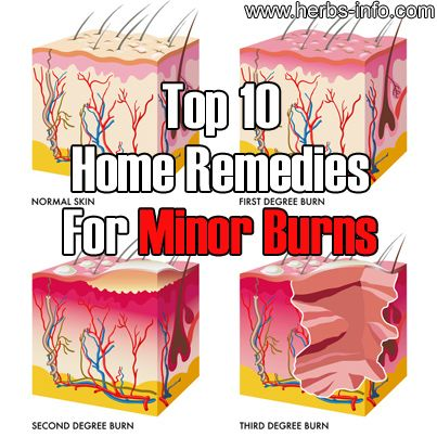 Top 10 Home Remedies For Minor Burns