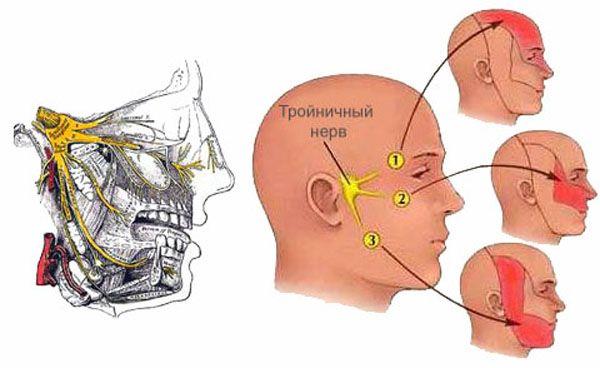 Невралгия тройничного нерва – почему возникает и как лечить