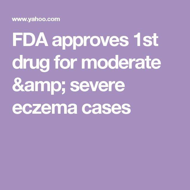 FDA approves 1st drug for moderate & severe eczema cases