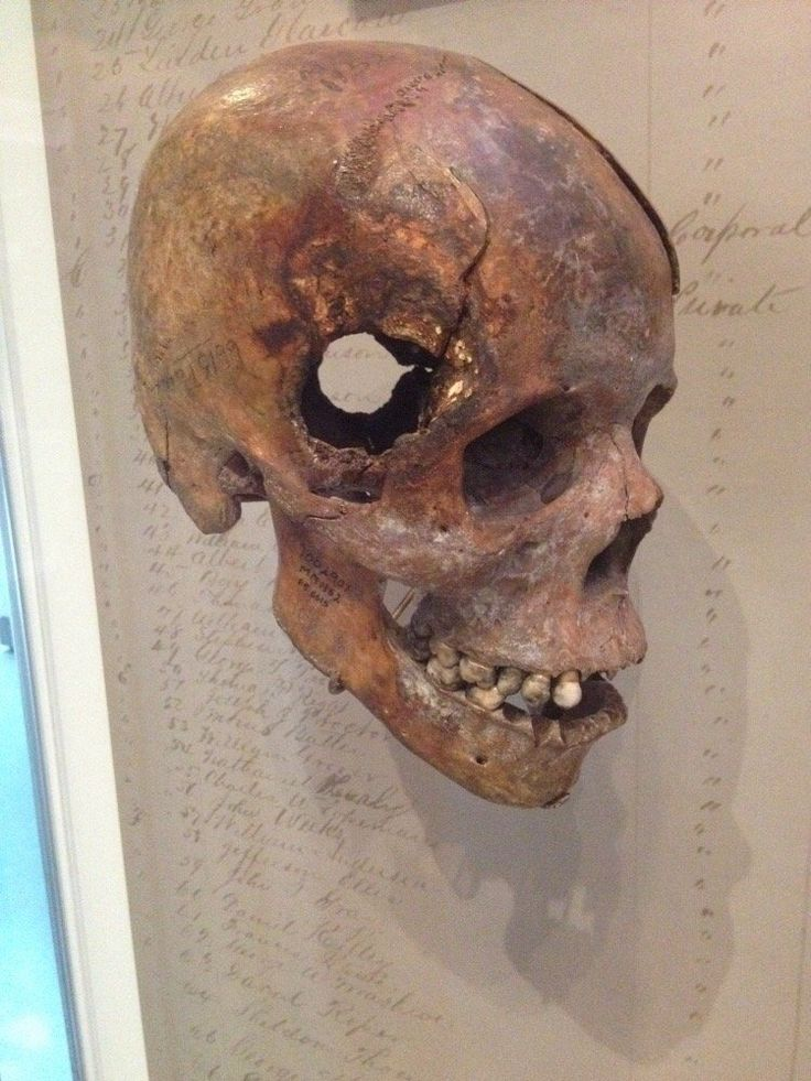 """museum-of-artifacts: """" Skull from Civil War. Fatal wound inflicted by exploding 12 pound artillery shell """""""