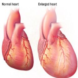 Enlarged Heart Causes, Symptoms, And Treatment