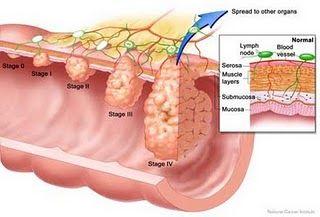 Menurut penelitian Fakultas Universitas Gadjah Mada, dr Agung endro nugroho Msi Apt, Kulit manggis mengandung senyawa alfamangostin dan garcinon E yang mampu menghambat proliferasi sel kanker dengan mengaktivasi enzim kaspase 3&9 yang memicu sel kanker untuk melakukan apoptosis (program bunuh diri sel kanker dengan sendirinya)