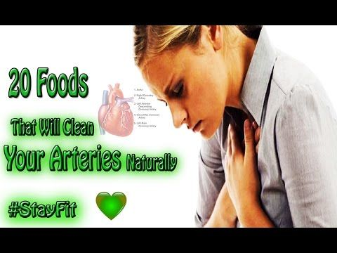 Good Food For Heart || 20 Foods That Will Clean Your Arteries Naturally ...