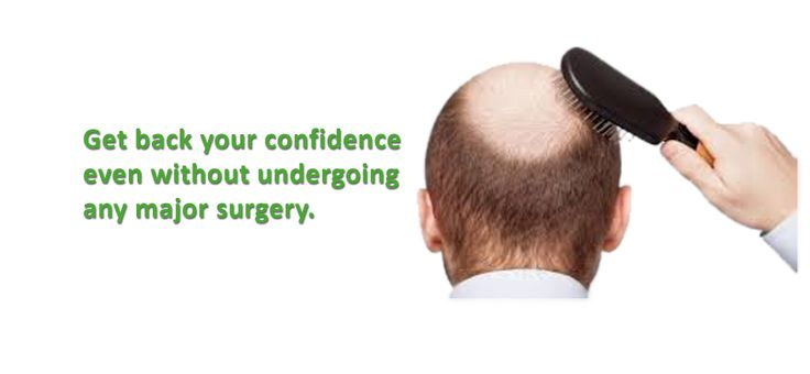 Want to take hair transplant treatment? Visit Cosma Zone clinic which is located in north Delhi area! They are providing hair transplant services at very competitive rates. Get Best Results with Specialized Doctor. Contact at 9425111944 for further information Or Email cosmazone1@gmail.com.