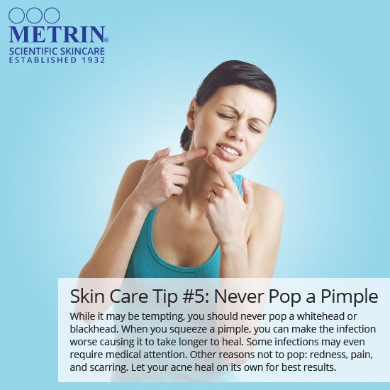 Skin Care Tip #5: Never Pop a Pimple. While it may be tempting, you should never pop a whitehead or blackhead. When you squeeze a pimple, you can make the infection worse causing it to take longer to heal. Some infections may even require medical attention. Other reasons not to pop: redness, pain, and scarring. Let your acne heal on its own for best results. #skin #skincare #tip #beautiful #happy #face #acne