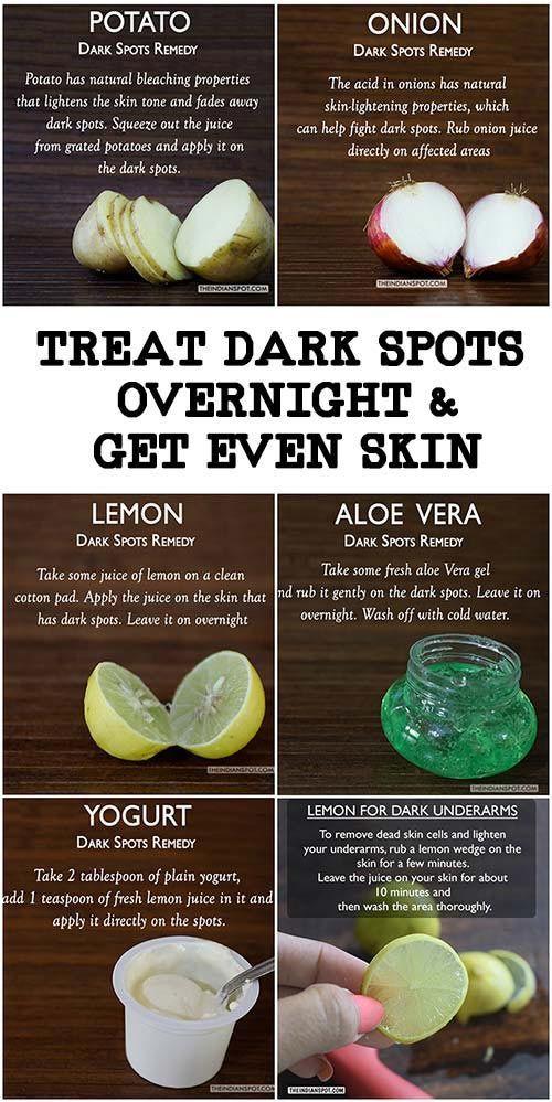 Behandeln Sie dunkle Flecken über Nacht und erhal…