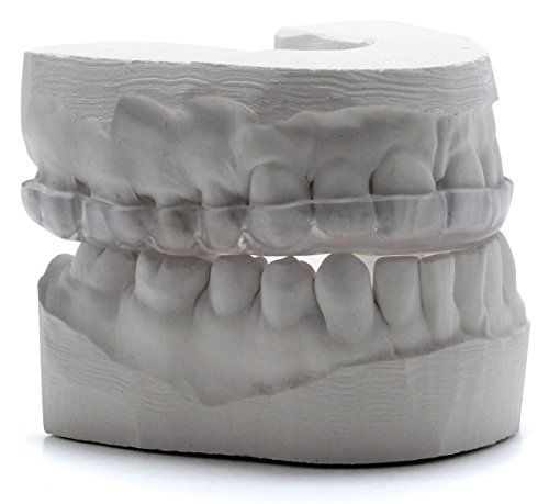 Custom Dental Night Guard for Teeth Grinding – Pro Teeth Guard. 365 Day 100% Money Back Guarantee. Size: Adult-Female.  Professionally made, custom dental night guard  designed to ease jaw muscle pain and protect your teeth against grinding damage. Get professional quality and save $100's of dollars: order online directly from a professional dental laboratory used by dentists to create night guards.     How To Get a Custom Night Guard and Save $100's of Dollars:      1) ORDER ONLINE ..