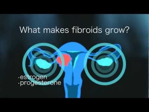 patient education plan for uterine fibroids Uterine fibroid embolization (ufe) (also called uterine artery embolization) is another option for treating uterine fibroids it shrinks or destroys uterine fibroids by blocking the artery that supplies blood to them.
