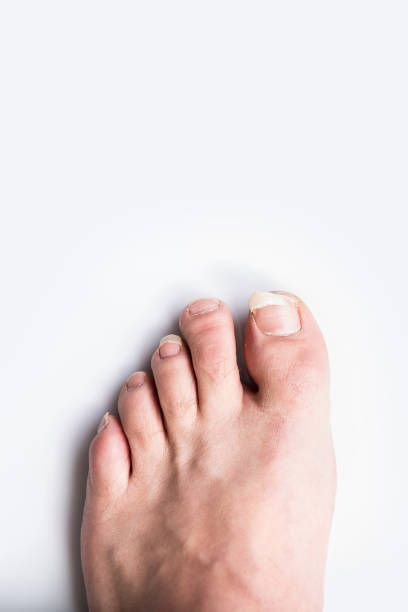 What Causes Toenail Fungus And How To Get Rid Of It-Fingernail ...