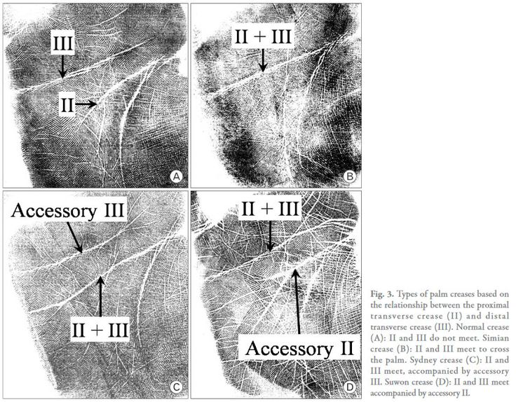 2010 Definition for the Suwon crease in the article: 'Improved analysis of palm creases'.