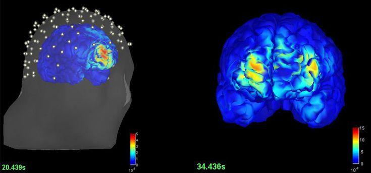 Nuevo modo de detectar epilepsia sin intervención quirúrgica – Ingeniería Biomédica